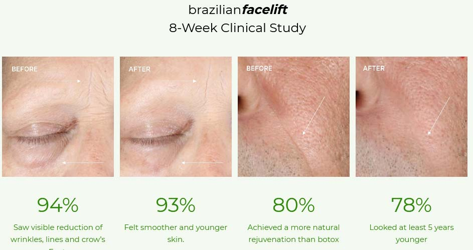 Brazilian facelift kit