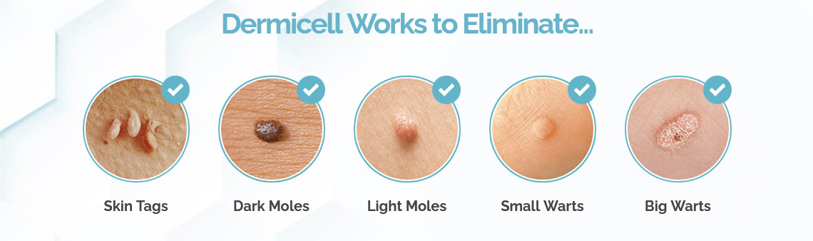 Dermicell Skin Tag Remover